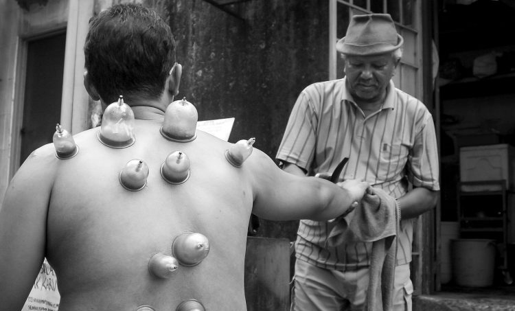 Cupping-therapie voor sporters
