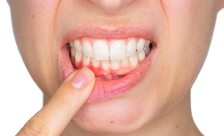 Tandvleesontsteking en het risico op maag- en slokdarmkanker